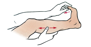 судороги в ногах руках симптомы лечение