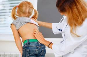 сутулость у детей симптомы и лечение