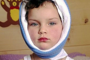 свинка симптомы лечение у детей