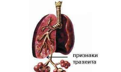 трахеит ларингит лечение симптомы и лечение