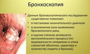 трахеобронхомаляция у детей симптомы и лечение