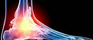 трещина кости ноги симптомы лечение