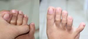 трещина на мизинце ноги симптомы и лечение