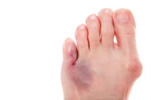 трещина в пальце ноги симптомы и лечение