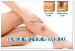 трофическая язва ноги симптомы и лечение в домашних условиях