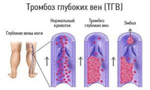 тромб вен на ногах симптомы и лечение