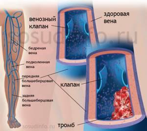 тромбофлебит на ногах симптомы и лечение