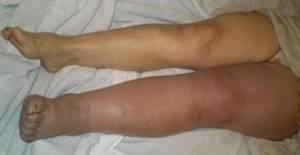 тромбофлебит вен на ногах симптомы и лечение