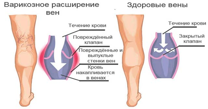 тромбоз ноги симптомы и лечение