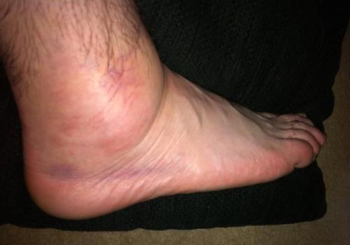 ушиб ноги симптомы и лечение