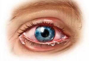 увеиты симптомы лечение у детей