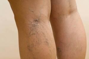 варикоз 1 стадия на ногах симптомы лечение