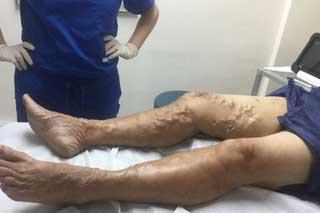 варикоз на ногах у мужчин причины симптомы лечение