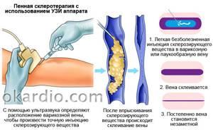 варикоз на ногах у женщин лечение симптомы