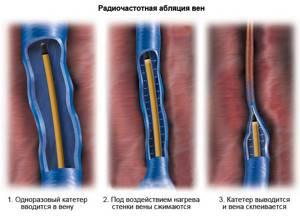 варикоз на ногах у женщин симптомы и лечение
