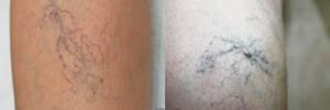 варикозное расширение магистральных вен на ногах симптомы и лечение