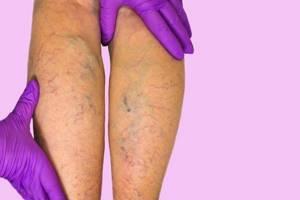варикозное расширение вен глубоких на ногах симптомы и лечение