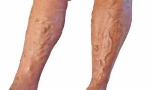 варикозное расширение вен на ногах симптомы и лечение диета