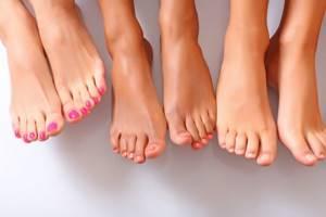 варикозное расширение вен на ногах симптомы и лечение картинки