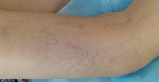 варикозное расширение вен на ногах симптомы и лечение нога посинела