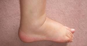 варикозное расширение вен на ногах симптомы и лечение у подростков