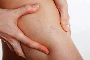 варикозное расширение вен на ногах симптомы и лечение у женщин