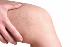 варикозное расширение вен на ногах симптомы лечение в домашних условиях