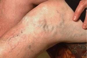 варикозное расширение вен на ногах стадии симптомы и лечение