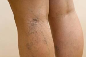 варикозное расширение вен у беременных на ногах симптомы и лечение