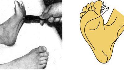 вестибулопатия симптомы и лечение у детей