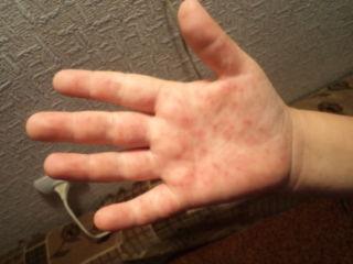 вирусная пузырчатка у детей симптомы лечение