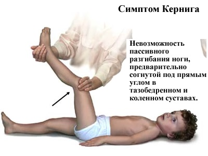 вирусный менингит симптомы у детей лечение