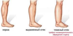 внутренние вены на ногах симптомы и лечение