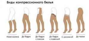внутренний варикоз на ногах симптомы и лечение