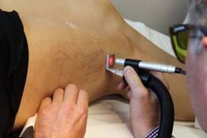 внутренний варикоз вен на ногах симптомы и лечение