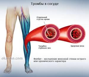 воспаление глубоких вен на ногах симптомы и лечение