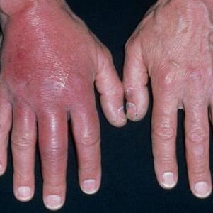 воспаление кожи ноги симптомы и лечение в домашних условиях