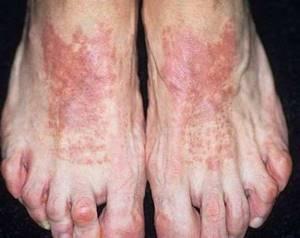воспаление кожи стопы ноги симптомы и лечение