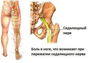 воспаление нерва ноги симптомы и лечение