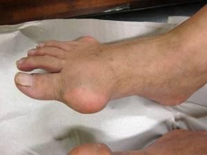 воспаление сустава ноги симптомы и лечение