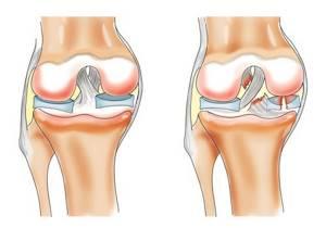 воспаление связок ноги симптомы и лечение