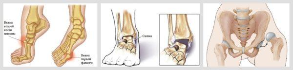 вывих ноги симптомы лечение