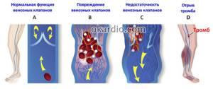 язвы варикозное расширение вен на ногах симптомы и лечение