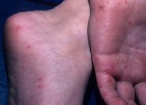заболевание рука нога рот симптомы и лечение