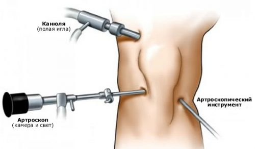 заболевание суставов на ногах симптомы и лечение