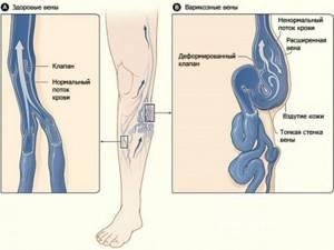 заболевание вен на ногах симптомы лечение