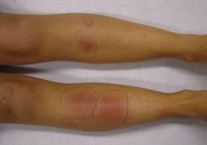 заговоры при рожистое воспаление ноги симптомы и лечение