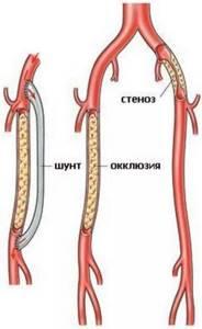 закупоренные сосуды на ногах симптомы и лечение
