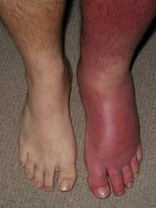 заразно ли рожистое воспаление ноги симптомы и лечение