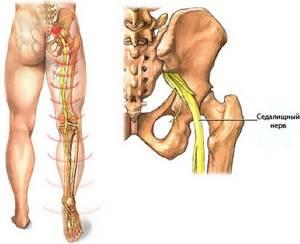 защемление нерва ноги симптомы и лечение